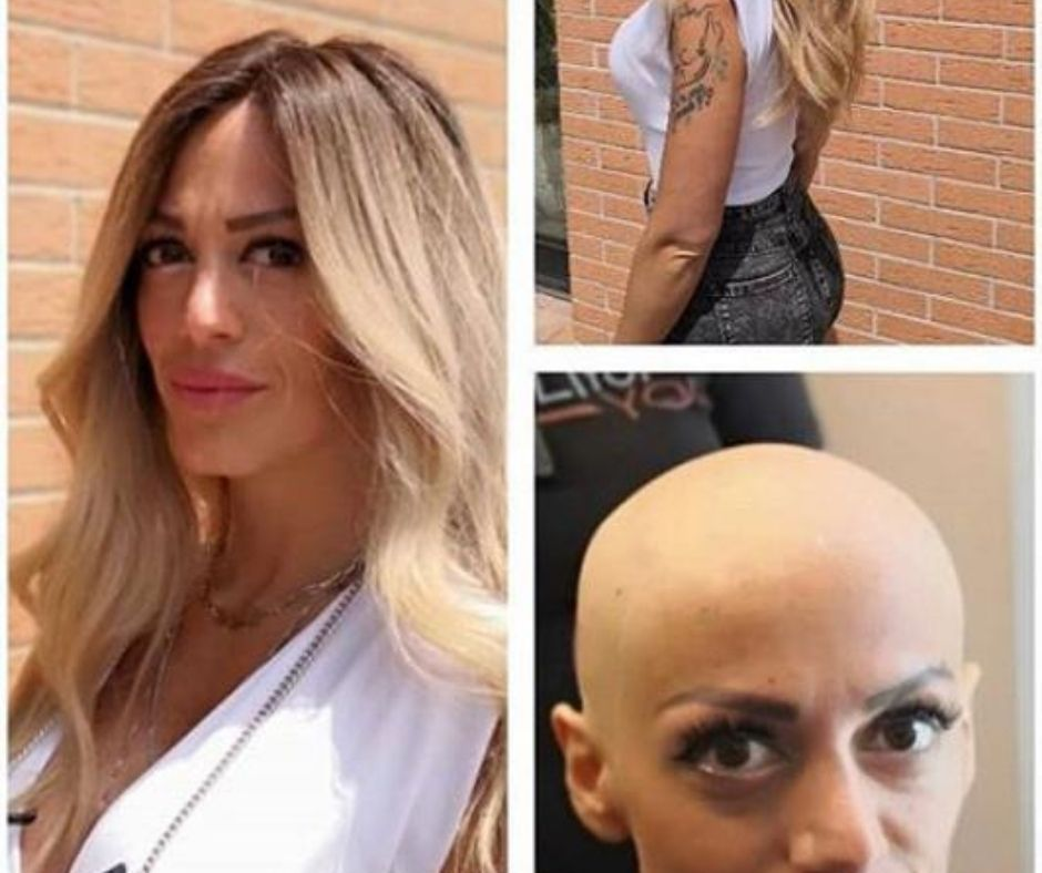 Protesi per capelli, calvizie, alopecia | Evolution Planet